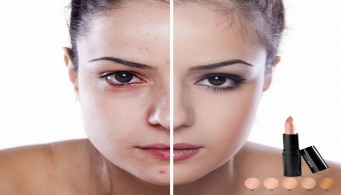 Cách makeup dành cho da mụn và vết thâm